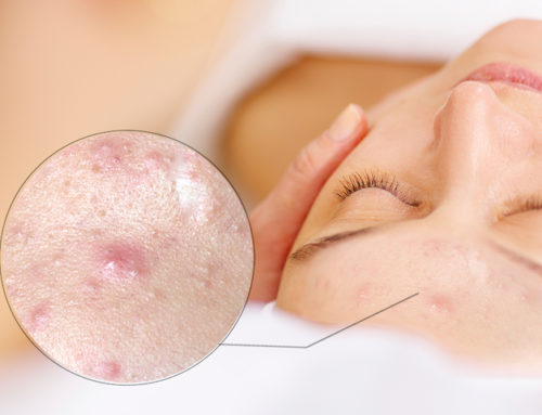 IPL is Revolutionising Acne Treatment